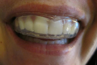 protect your teeth from injuries