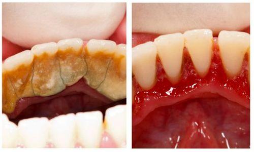 Здоровая полость рта: как удалить зубные камни 69
