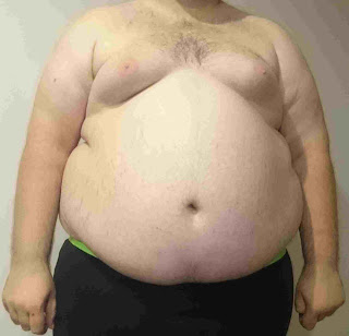 health tips,Obesity is the gateway to other diseases