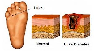 Cara Mencegah Amputasi Diabetes