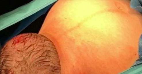 La maman va accoucher par césarienne. Puis quand la tête du bébé commence à sortir? La caméra capte ces images très rares.