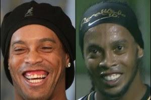 "<Imgsrc =""dientes-ronaldinho-300x199.jpg"" width = ""300"" height ""199"" border = ""0"" alt = ""nueva sonrisa de Ronaldo"">"