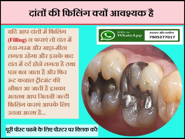 दांतों की फिलिंग क्यों आवश्यक है