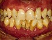 Paphos Dentist, Dr Elena Demetriou: What is Periodontitis?  Paphos Dentist,...