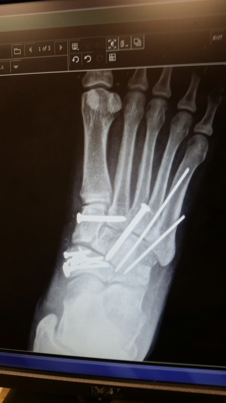 Footnotes My Lisfranc Injury And The Road To Recovery