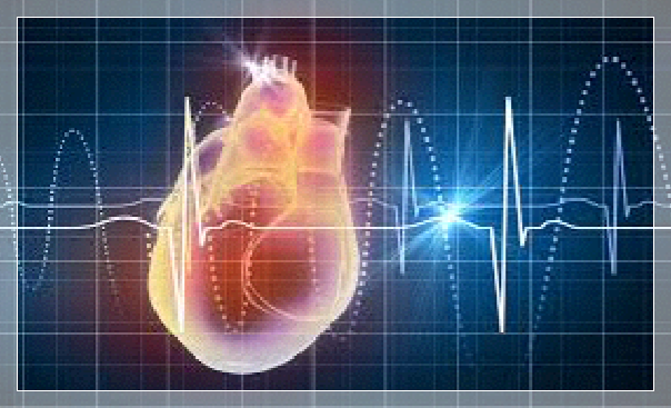 infarto, corazón, rcp