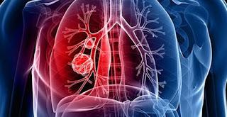 akciğer kanseri, ömrü uzatan ilaç