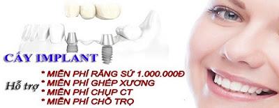 trồng răng implant giá rẻ nhất là bao nhiêu -7