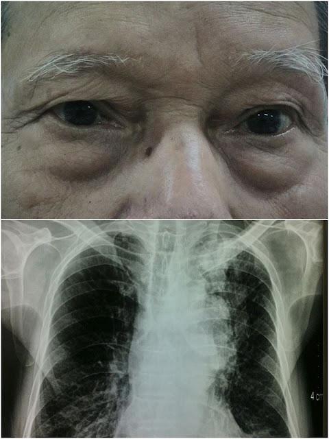 Hội chứng Claude Bernard-Horner