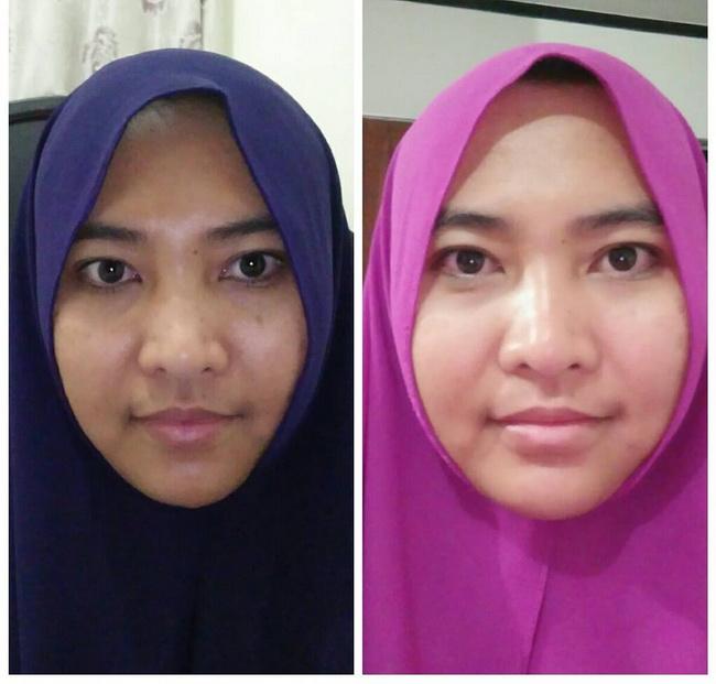 2 Cara Menghilangkan Flek Hitam Di Wajah Ada Testimoni: Review 3 Bulan Pemakaian Zalfa Miracle Skincare