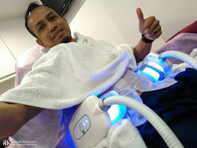 Khir Khalid - Rawatan Buang Lemak Cryo-Lipolysis Dengan Zimmer Z Lipo dan Z WavePro