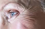 http://www.women-health-info.com/blog/skin-wrinkles