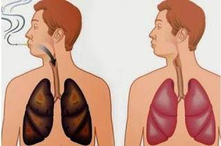 paru paru perokok dan bukan perokok