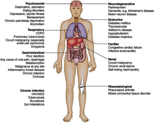 hypopituitarism symptoms in adults