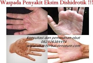 cara mengobati gatal,obat gatal atau eksim,obat eksim,cara menghilangkan gatal pada tangan,cara menghilangkan gatalk pada kaki