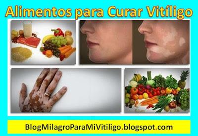alimentos-recomendados-que-ayudan-a-curar-el-vitiligo-naturalmente