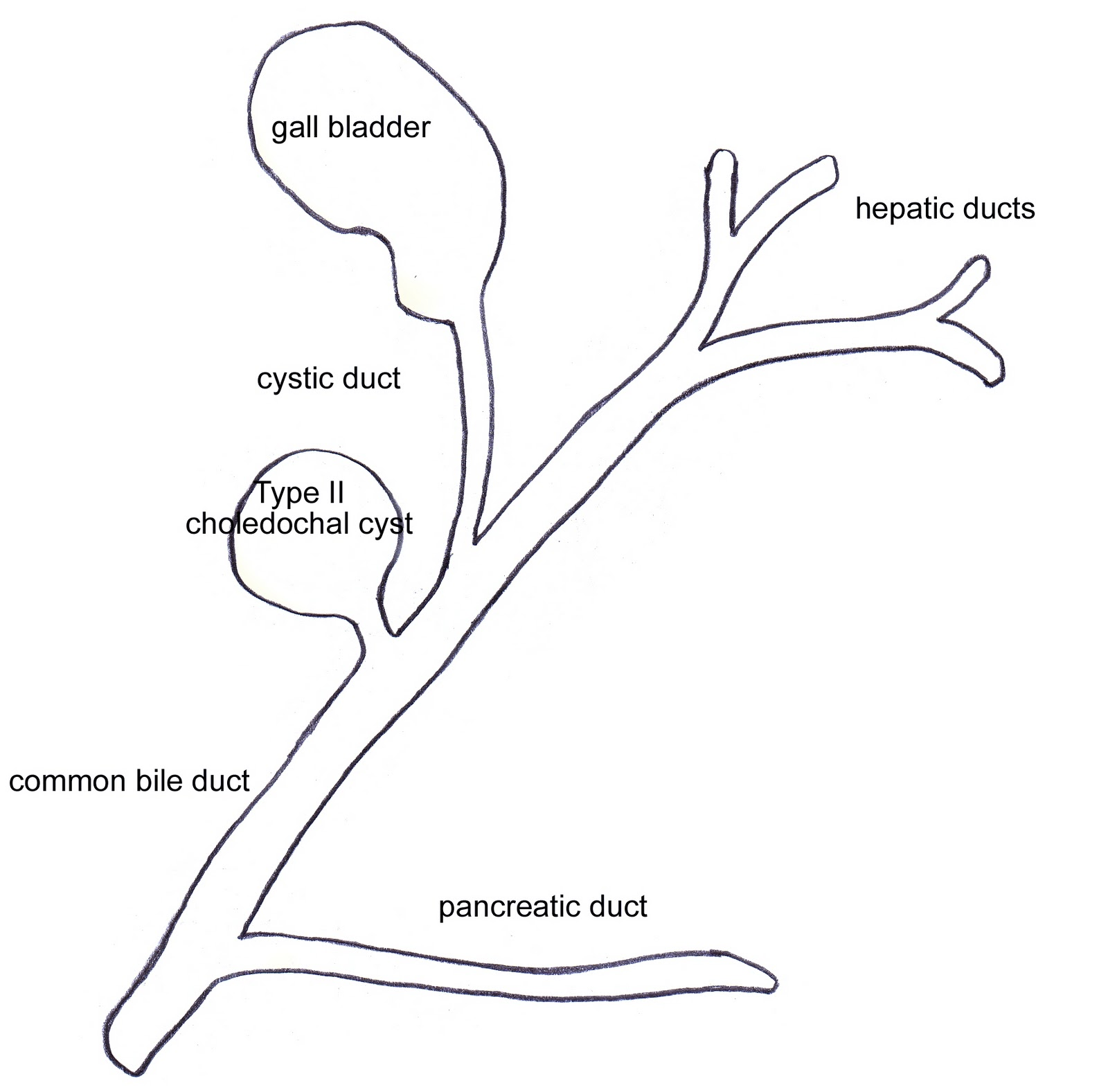 ABC Radiology Blog: Todani Classification Of Bile Duct Cysts