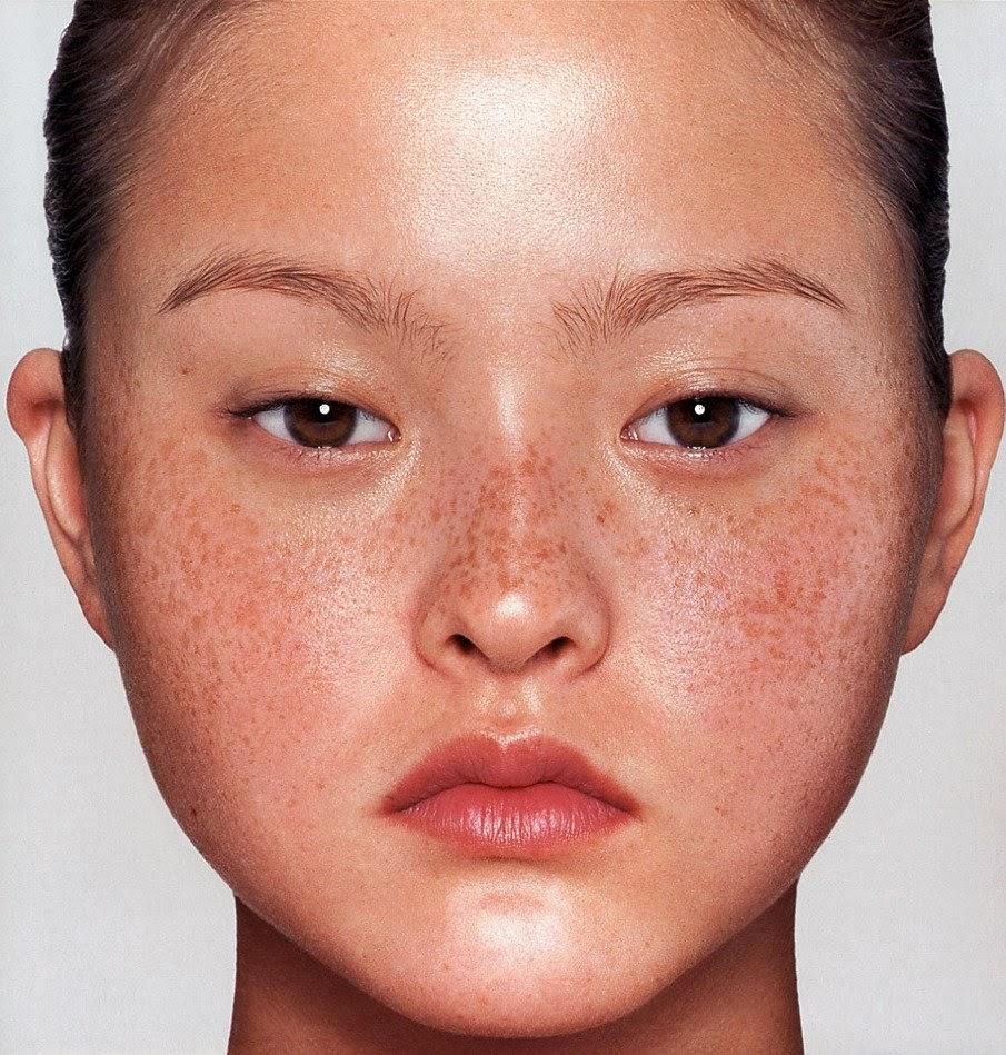5 Penyebab Dan Cara Menghilangkan Jerawat Di Leher Cepat: Cara Mengatasi Masalah Jeragat Pada Kulit Wajah