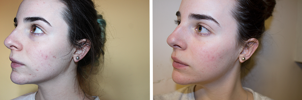Naruko am+pm A40 Pore Minimizing Complex retinol before and after