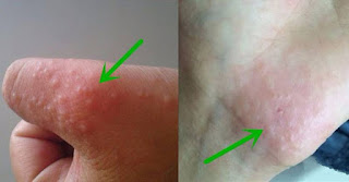 cara mengobati gatal kulit dengan obat herbal bersih darah dan exsimtas ampuh