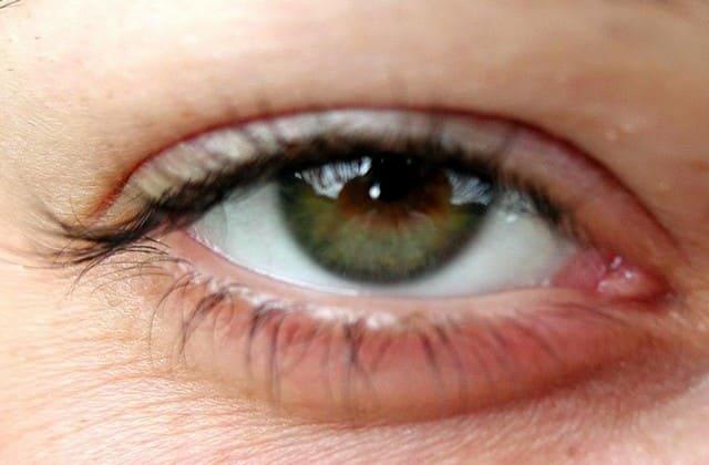 Kantong mata gelap bisa membuat penampilan kamu menjadi kurang pede. Untuk mengatasinya, kamu bisa memanfaatkan yoghurt drink