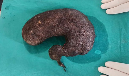 Photos: Doctors Remove Massive Hairball From Teenage Girl's Stomach