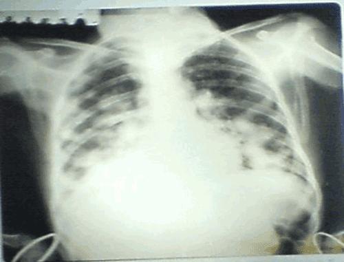 Cliché Thoracique iNterprété 09 | Staphylococcie l'aspect en lâché de ballon