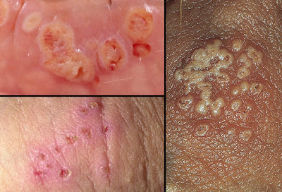 Genital Herpes || Causes, Symptoms, Treatment, Outlook & 5 Facts about herpes