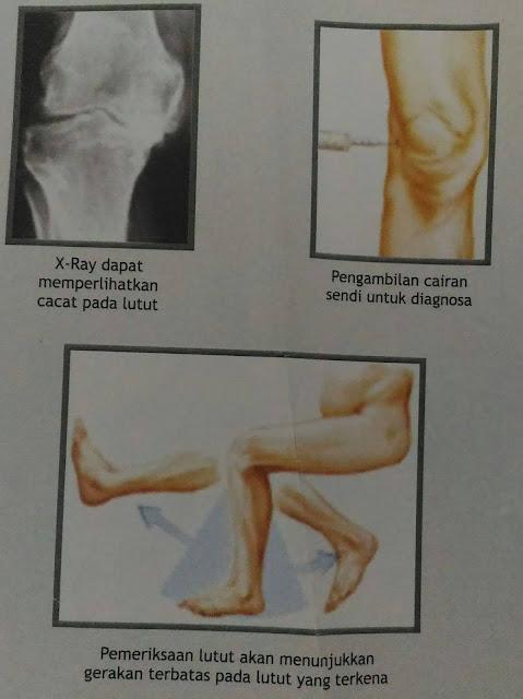 persendian sering nyeri atau muncul rasa sakit? Kenali gejala Osteoarthritis