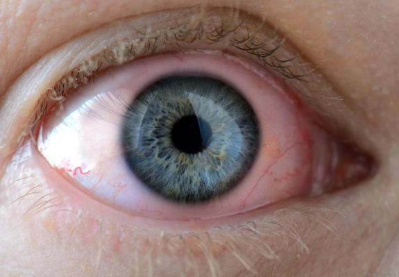Kanker Mata - Penyebab, Gejala dan Pengobatan