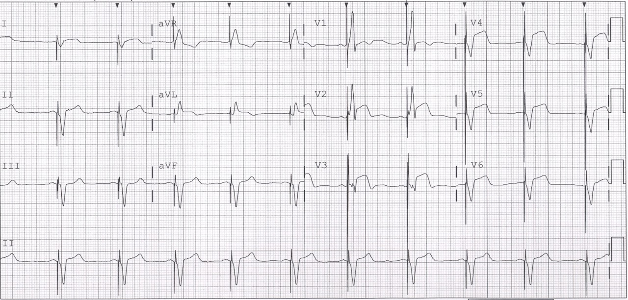 Dr Smith's Ecg Blog A Patient With Ischemic Symptoms And. Lift Signs. Cerebellar Signs Of Stroke. Italics Signs. Volcano Signs