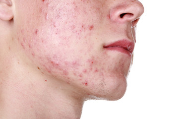 Cure Acne With These 6 Methods