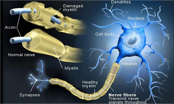 مناطق توضع مادة الميلين Myelin  حول العصبونات وتأثير تآكلها