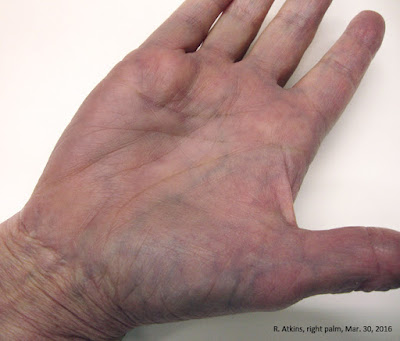 Dupuytrens Disease, stage N, my right hand