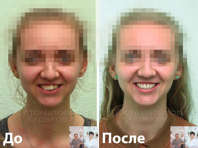 Два фото лица пациента до и после лечения брекетами