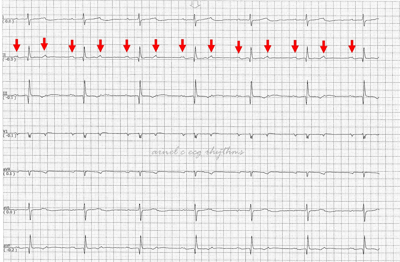 ECG Rhythms: Complete Heart Block or Not?