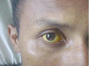 Cara Cepat Memulihkan Mata Kuning Menjadi Putih