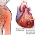 Pengobatan Terapi Lintah Untuk  Penyakit Kardiovaskular