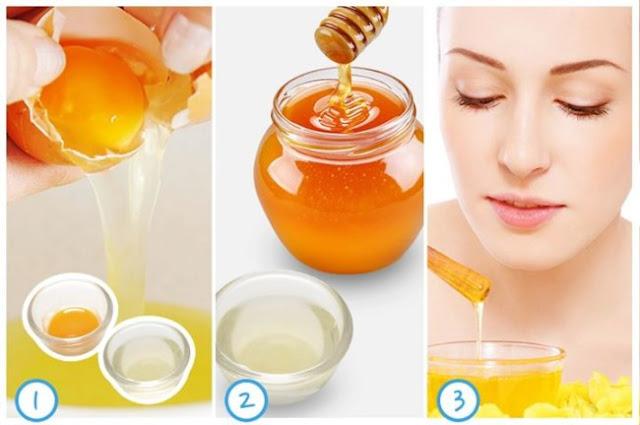 Dùng mật ong ấm để trị mụn đầu đen