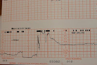 a photo of a Birth Pang Monitor Chart which is the illustration Jesus gave for Signs of the End Times