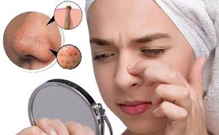 7 Cara Menghilangkan Komedo di Hidung dan Dahi Secara Alami