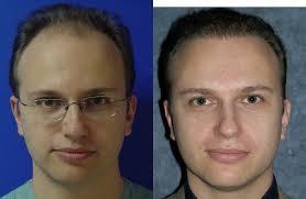 saç ekimi öncesi ve sonrası foto 9