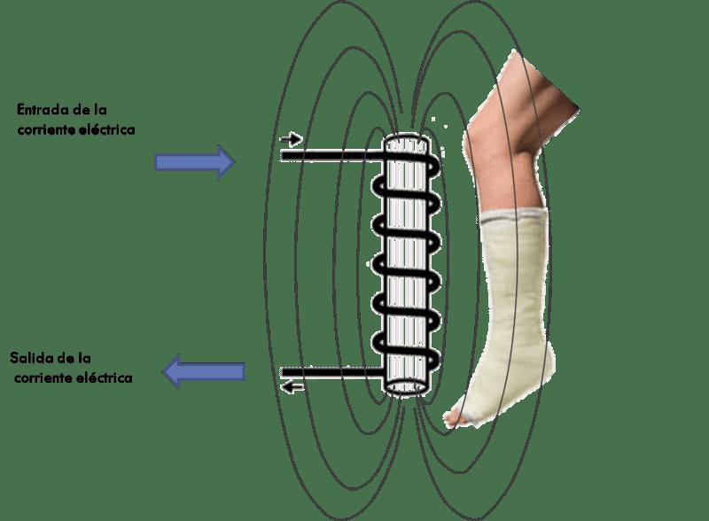 Así actúa el biomagnetismo en fracturas