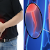 Appendicitis: Purpose, Signs, Treatments and How Can Be Trigger?