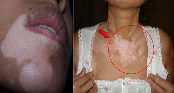Cara Menghilangkan Vitiligo