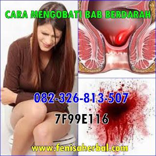 Jual Kapsul Ambejoss Obat Wasir Di (Telp/SMS) 081914906800 _ Gambar Penyakit Wasir Stadium 1 - 2
