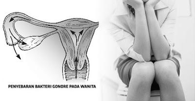 Apa Bahaya Penyakit Sipilis Pada Wanita Hamil