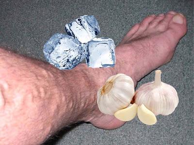 Cara Mengobati Varises dengan Es Batu dan Bawang Putih