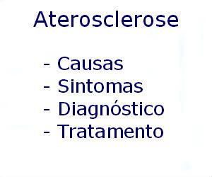 Aterosclerose causas sintomas diagnóstico tratamento prevenção riscos complicações