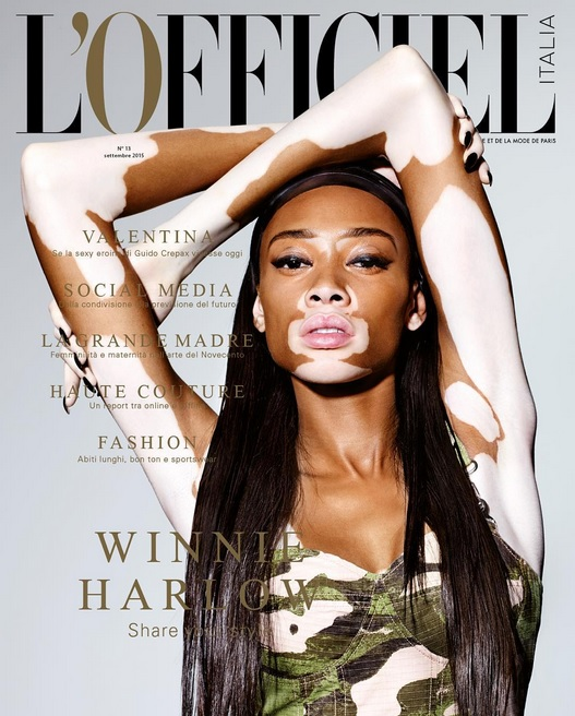 Afrolistas and the City™: Winnie Harlow for L'Officiel ...